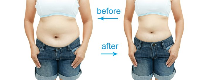 abdomen liposuction before and after images
