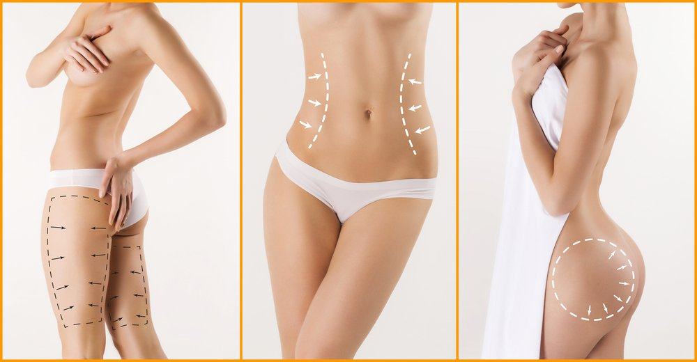 Areas that can be improved by SmartLipo are