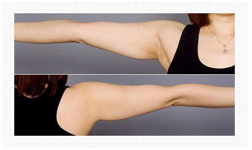 Arm liposuction Surgery Berofre and After