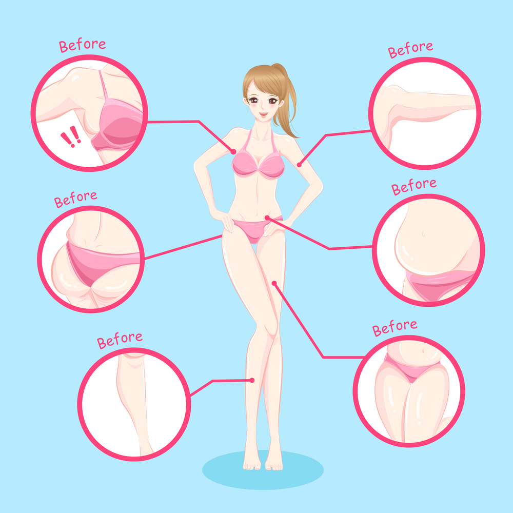 Full Body liposuction Surgery may include the following
