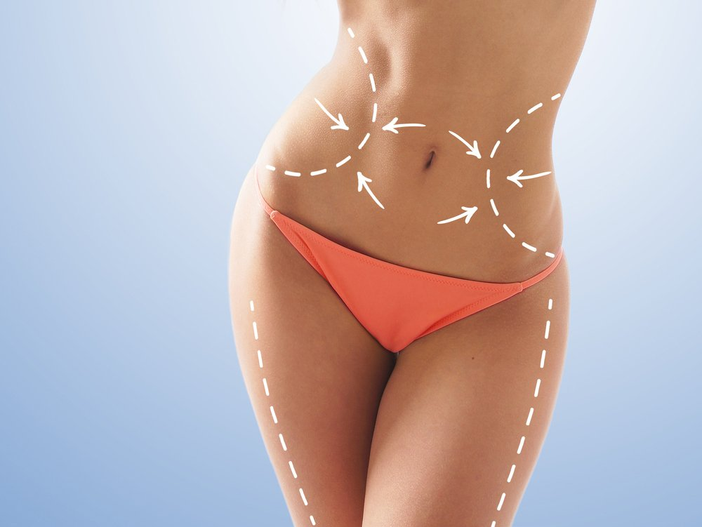How Fat removal surgery Liposuction is performed