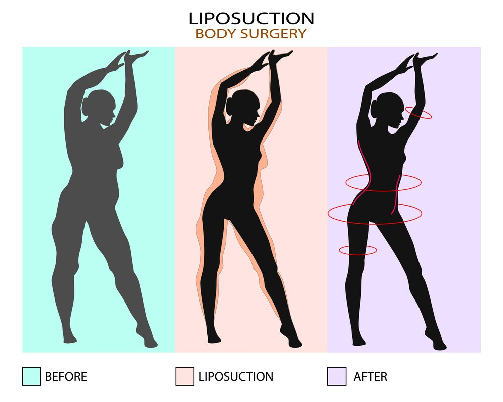 How abdomen liposuction is performed