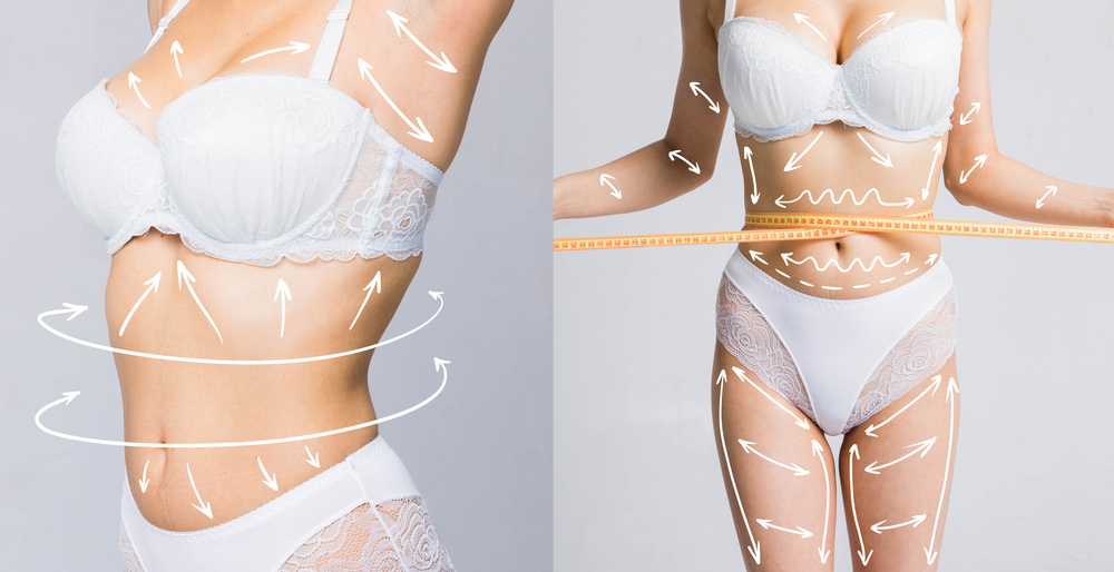 Laser Assisted Liposuction in korea