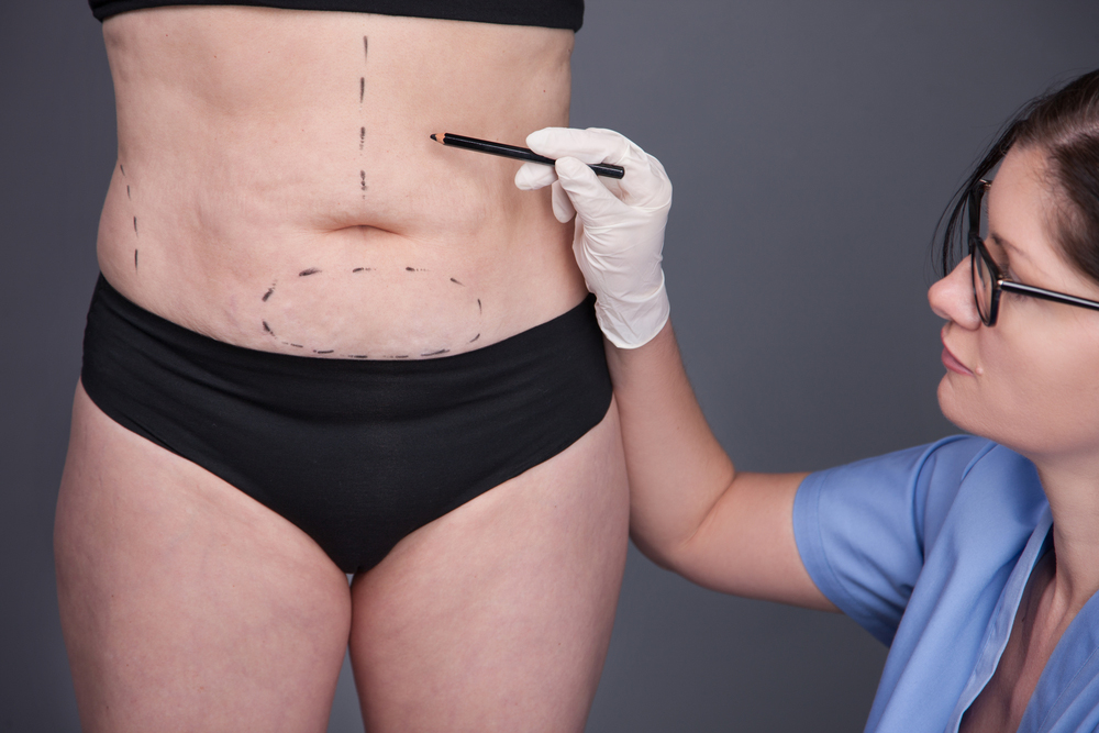Power Assisted Liposuction in korea