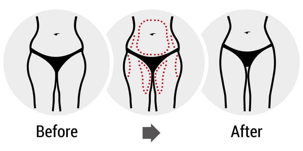 Smartlipo laser liposuction treatment before and after