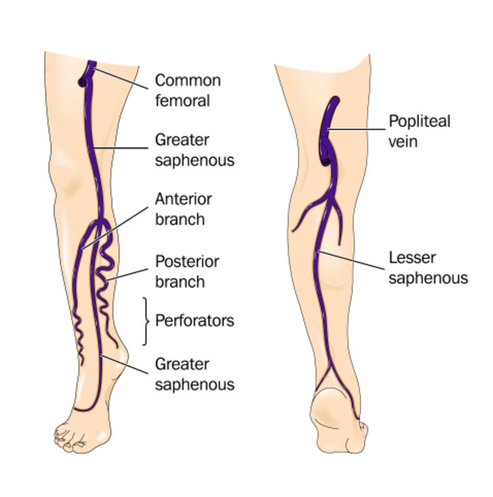 There are many factors for varicose veins laser treatment needed for expulsion and here are a few