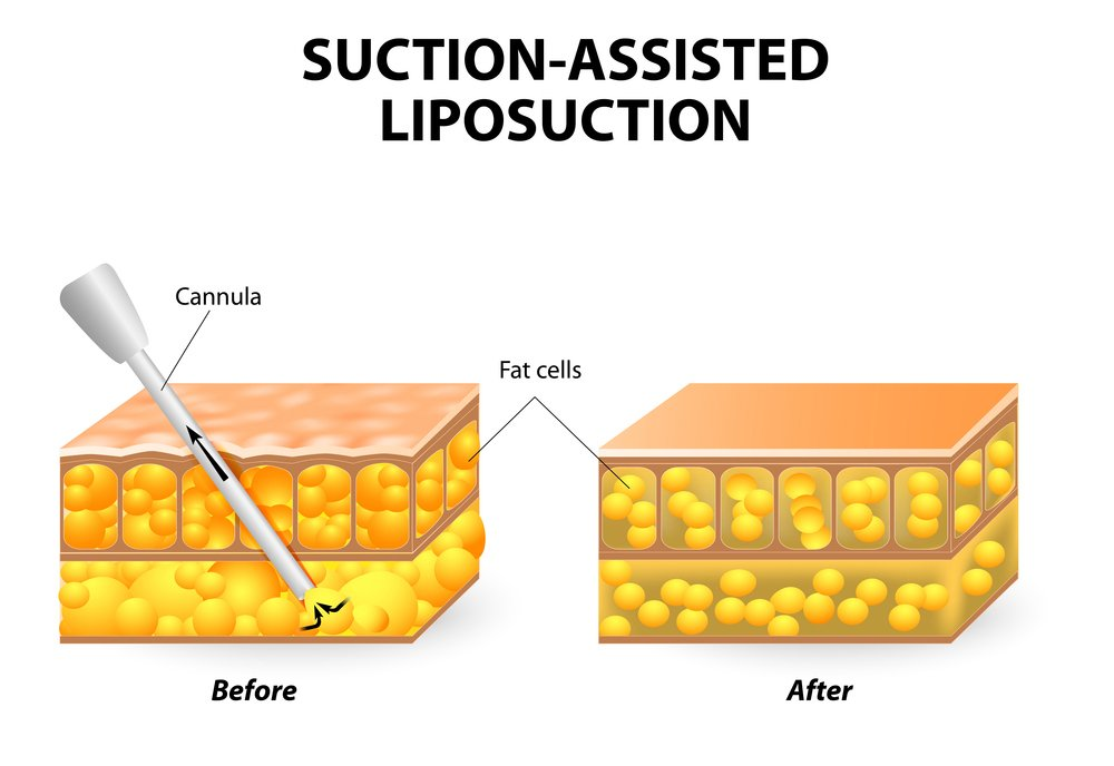 Traditional Suction Assisted Liposuction in korea