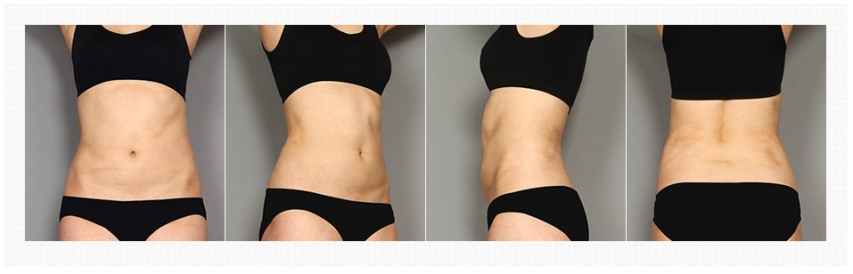 Tummy Tuck in Korea Before and After