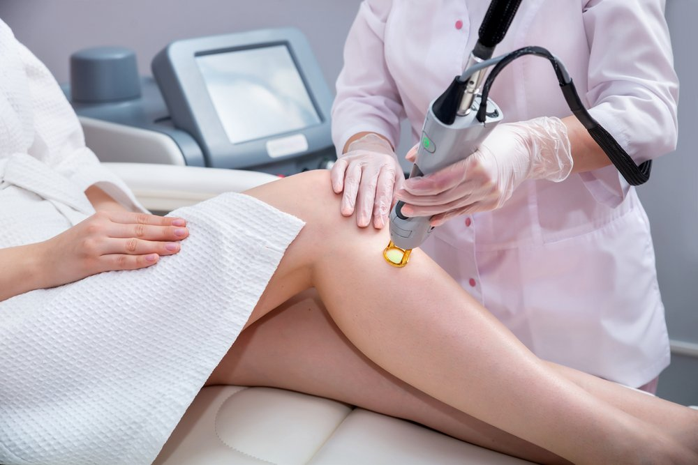 What is Smartlipo Laser Body Sculpting