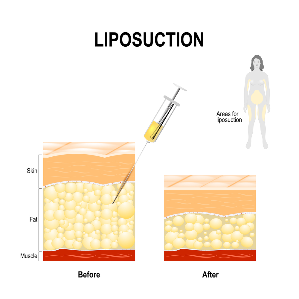 Best Liposuction Korea