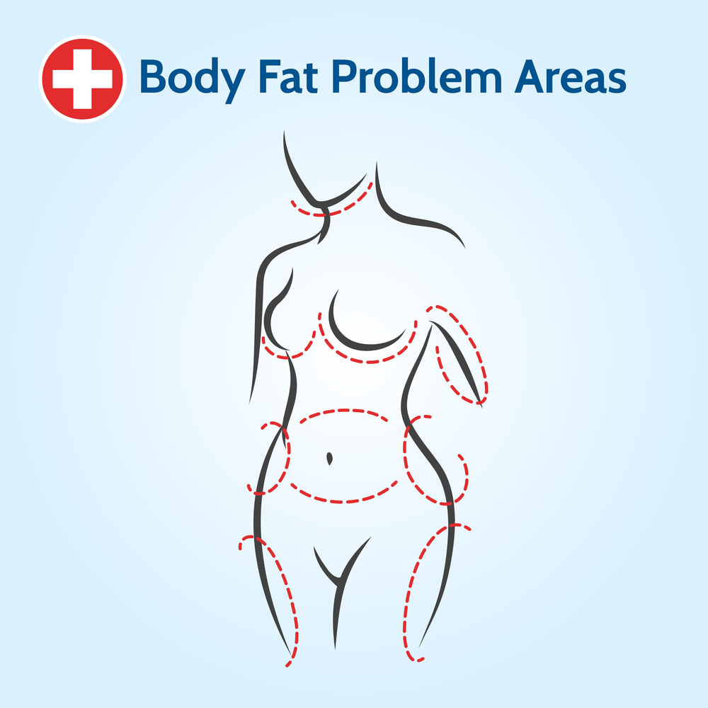 Body fat problem area liposuction korea