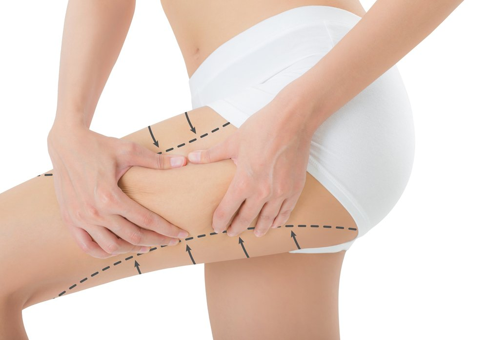 Inner Thigh Liposuction in Korea