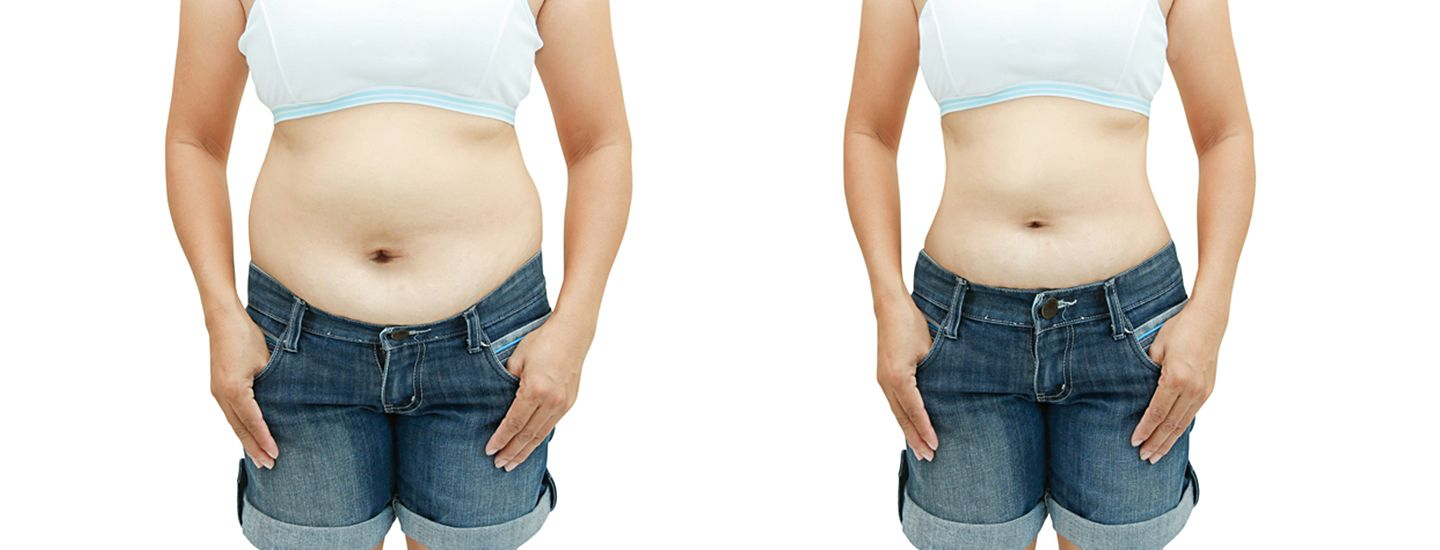 Liposuction Surgery korea before and after photo
