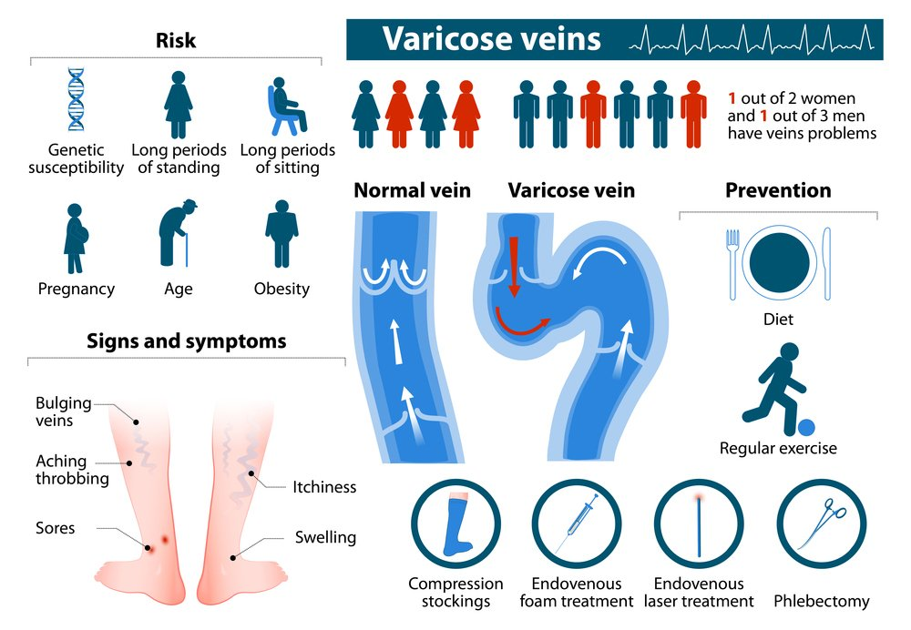 There are various components that can requires Varicose Veins Laser Treatment