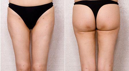 Thigh Liposuction korea 2