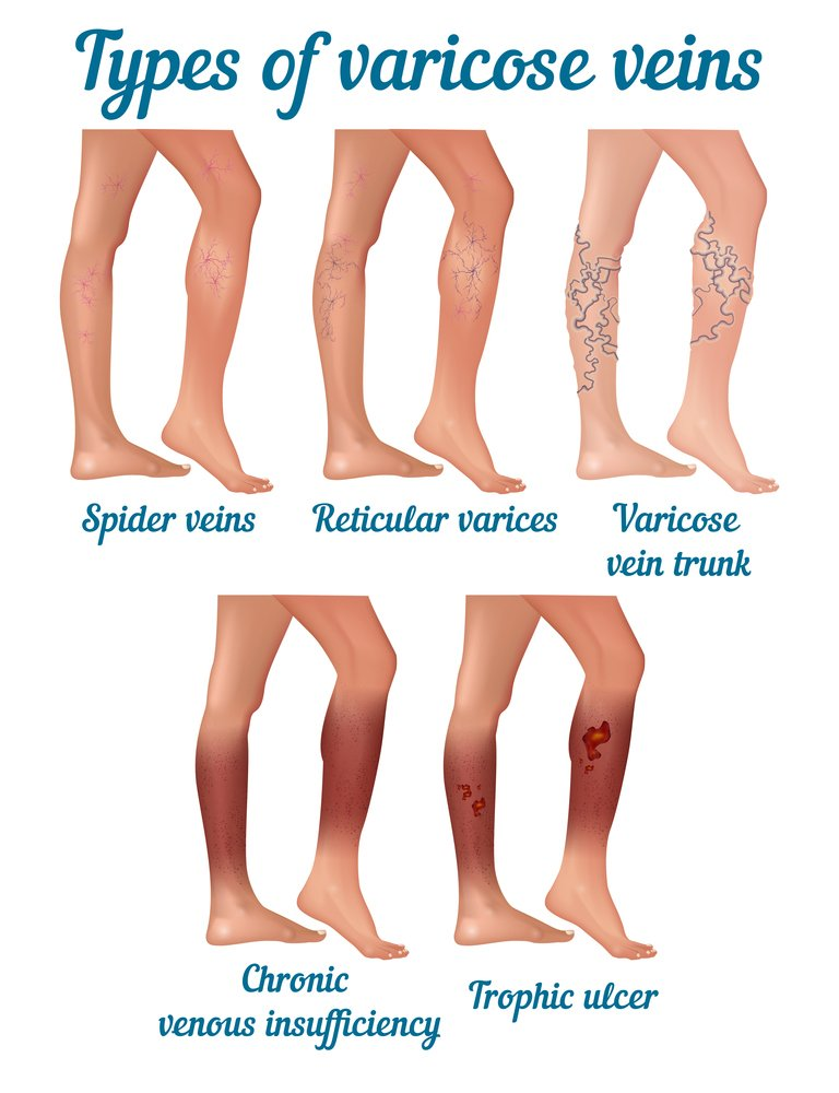 Type of Varicose Veins Laser Treatment