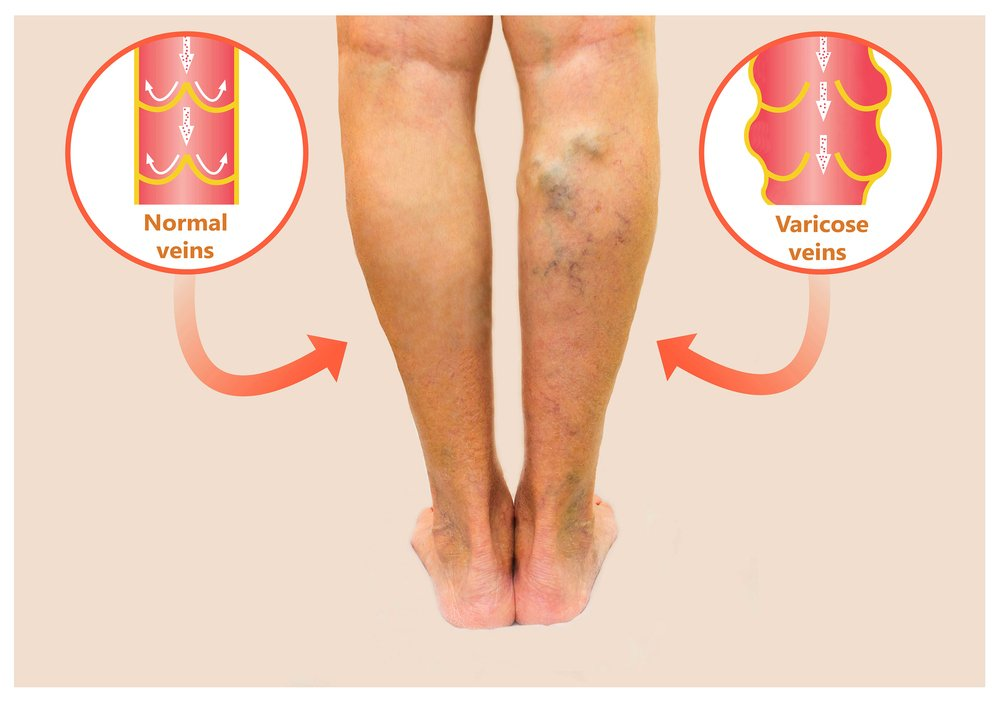What are Varicose Veins Laser Treatments