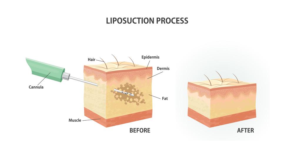 liposuction cost in Korea