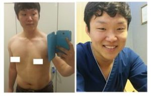 My effort to glorious journey of liposuction