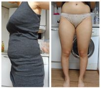 My Most joyful Liposuction (Abdomen, Love Handles, Thighs, Chanel Line) Experience