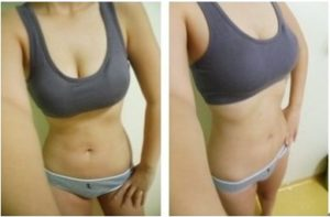Liposuction korea Brings My Perfect Body Shape
