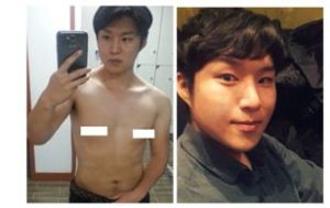 My effort to glorious journey of liposuction 3