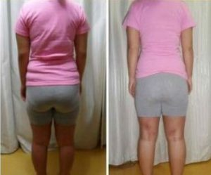 Liposuction korea Brings My Perfect Body Shape 4