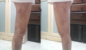 Thigh Liposuction– My journey 5