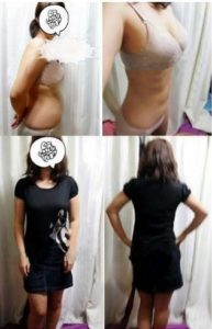 Liposuction korea Brings My Perfect Body Shape 7
