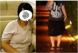 Liposuction korea Brings My Perfect Body Shape 9