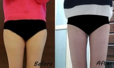 Thigh Liposuction– My journey