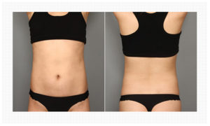 Thigh Liposuction korea