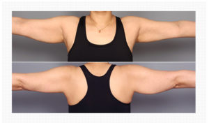 Arm Liposuction korea before and after