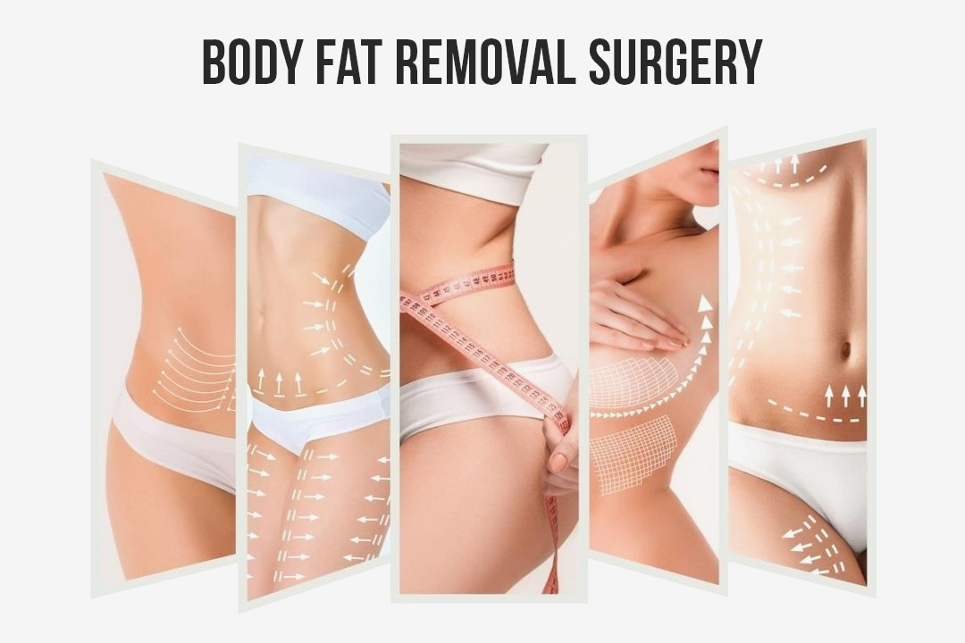 Full Body Fat Removal Surgery in South Korea