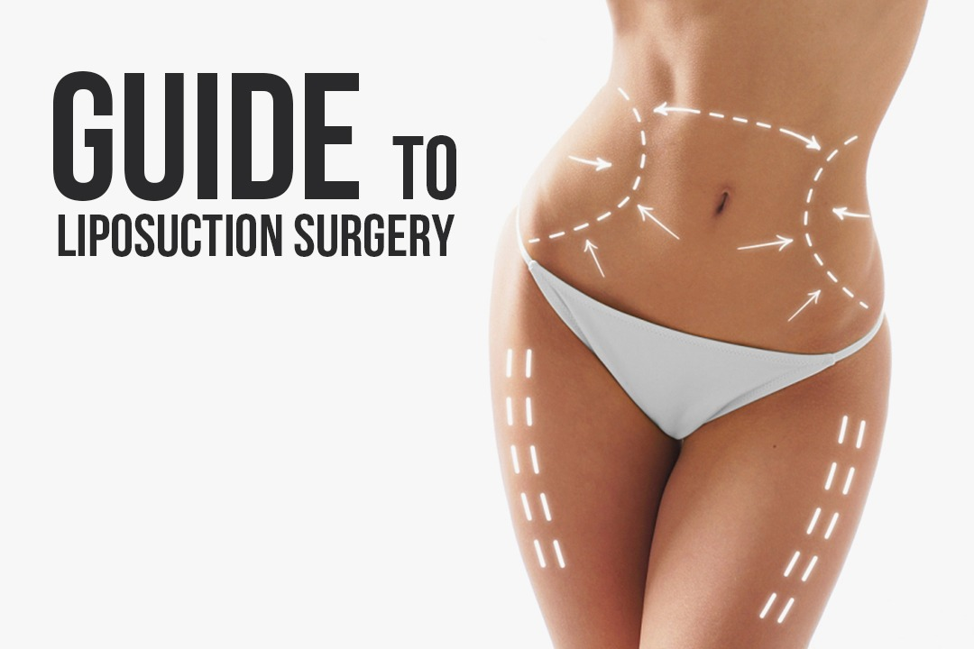 Guide to Liposuction Surgery In Seoul, Korea